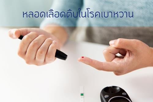 โรคหลอดเลือดตีบในผู้เป็นเบาหวาน thaihealth