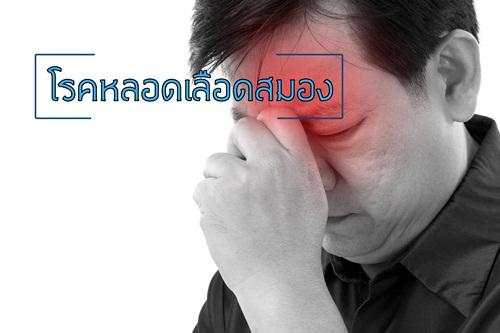 โรคหลอดเลือดสมอง   thaihealth