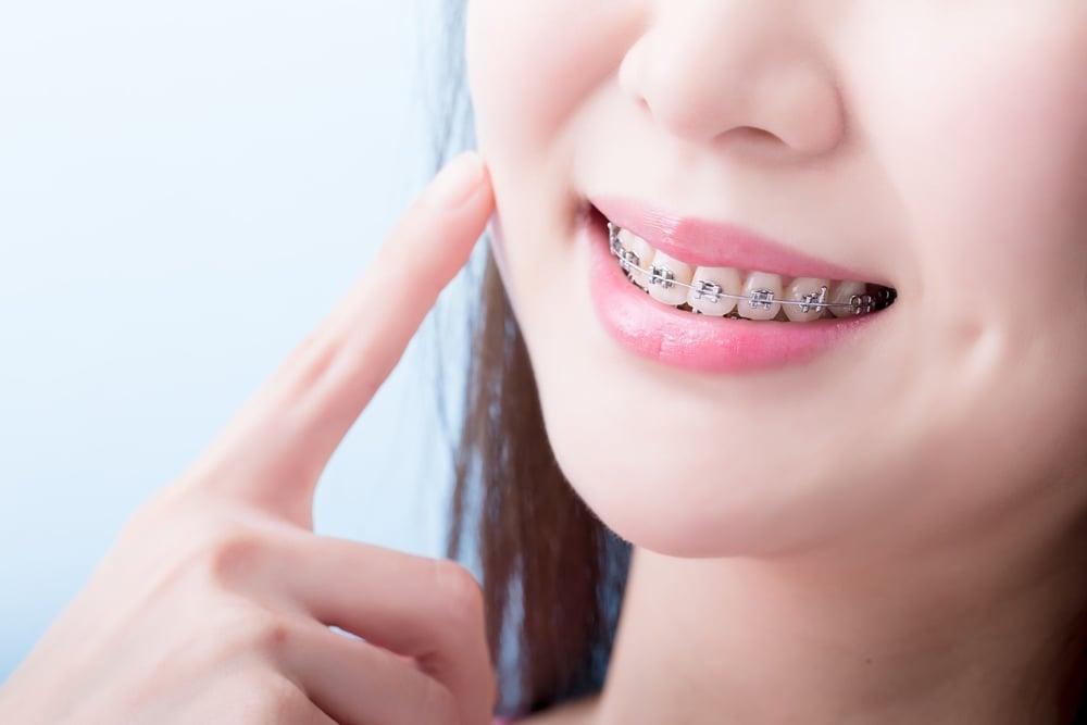 แพทย์เผย การจัดฟันที่เหมาะสมควรทำในช่วงอายุ 10-14 ปี thaihealth