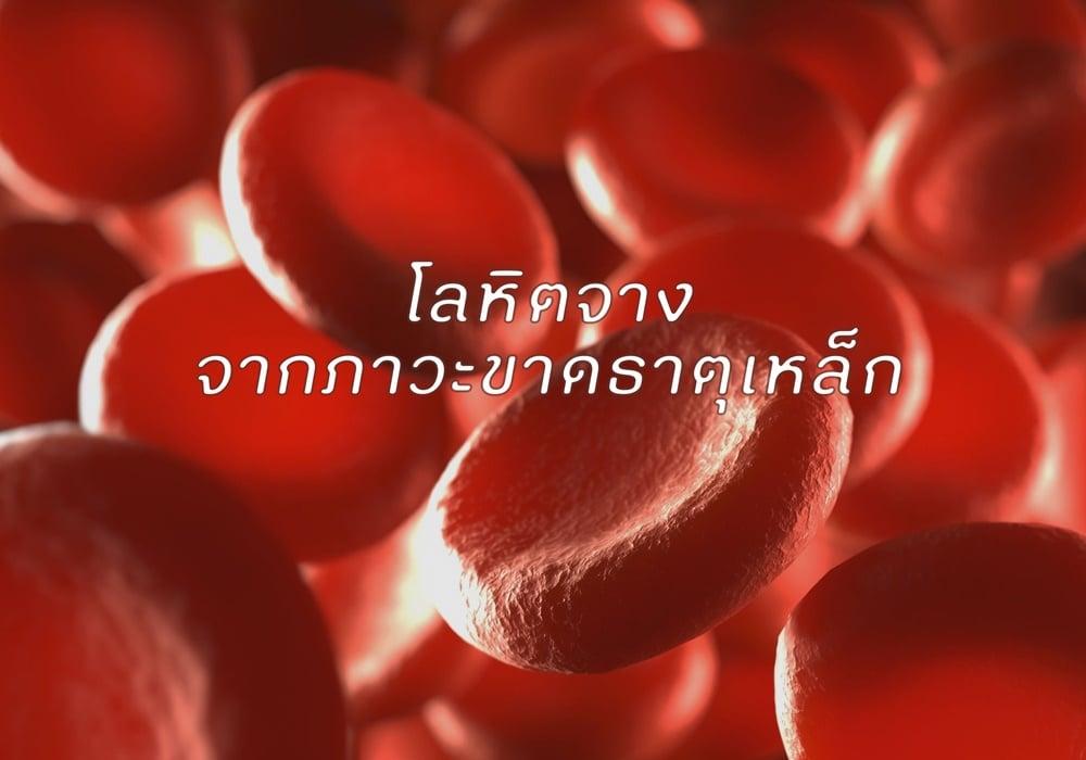 �ลหิต�า� �า�ภาวะ�าด�าตุเหล�� thaihealth