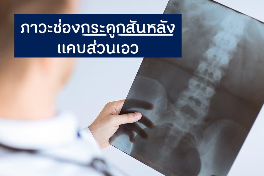 ภาวะช่องกระดูกสันหลังแคบส่วนเอว thaihealth
