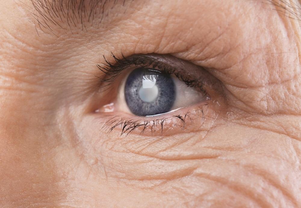 ตรวจสุขภาพตาห่างไกลจากต้อหิน thaihealth