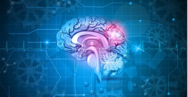 """""""โรคหลอดเลือดสมอง""""...รู้ก่อนเป็น ป้องกันได้ thaihealth"""