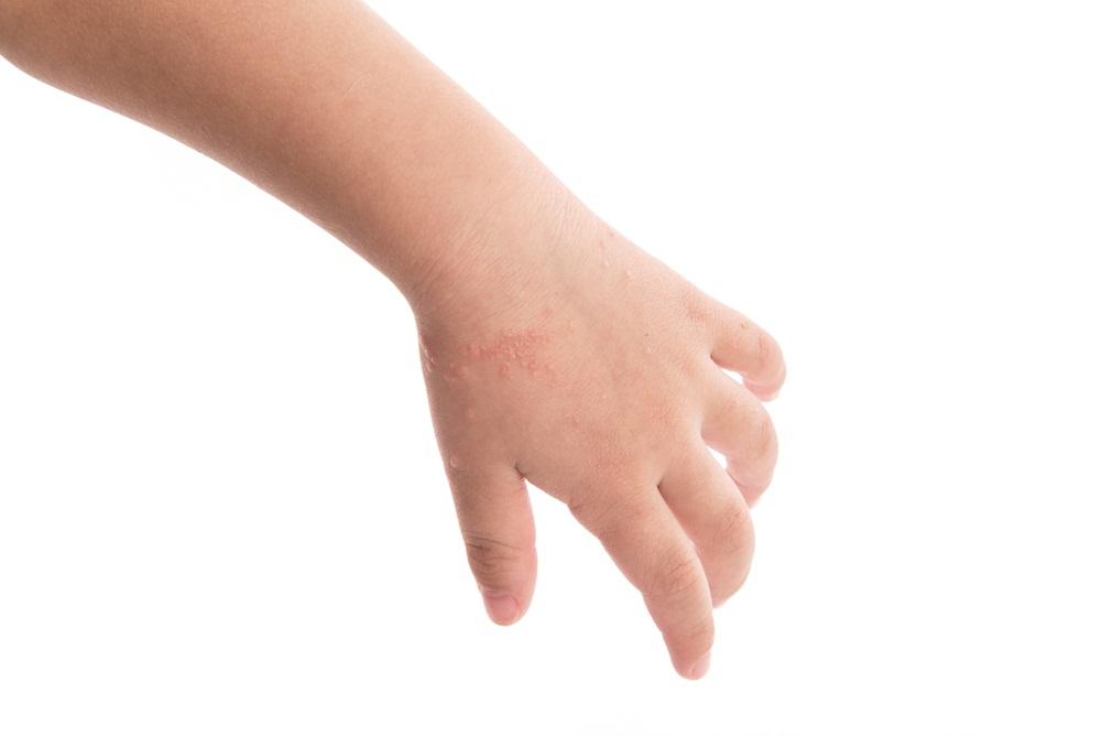 สังเกตตุ่ม แผลที่ปากเด็ก อาจเป็นโรคมือเท้าปาก thaihealth