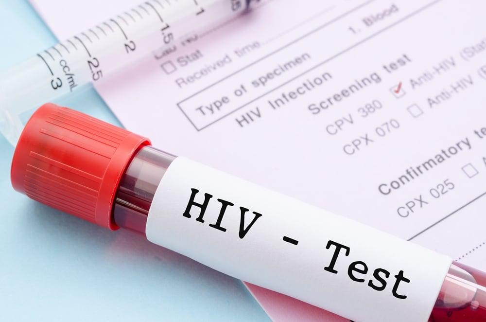 ความก้าวหน้าการรักษา เอชไอวี ในปัจจุบัน thaihealth