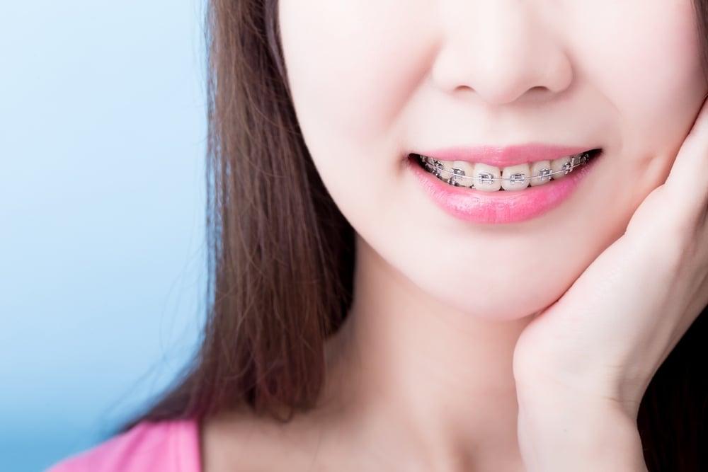 จัดฟันแฟชั่นในคลินิกเถื่อน เสี่ยงติดเชื้อ อันตรายถึงชีวิต thaihealth
