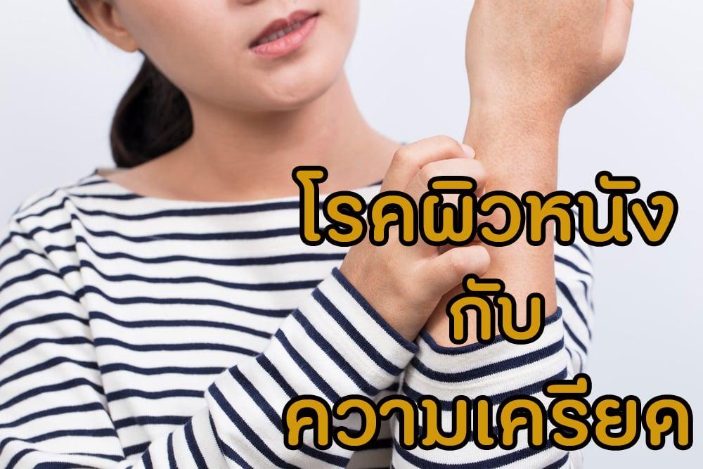 โรคผิวหนัง กับ ความเครียด thaihealth