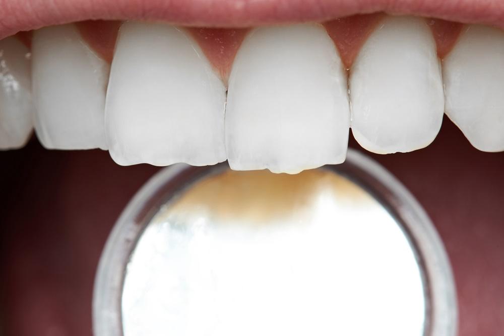 ราชทัณฑ์ปันสุข ดูแลสุขภาพช่องปากผู้ต้องขังในเรือนจำ thaihealth