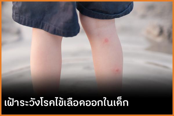 เฝ้าระวังโรคไข้เลือดออกในเด็ก  thaihealth