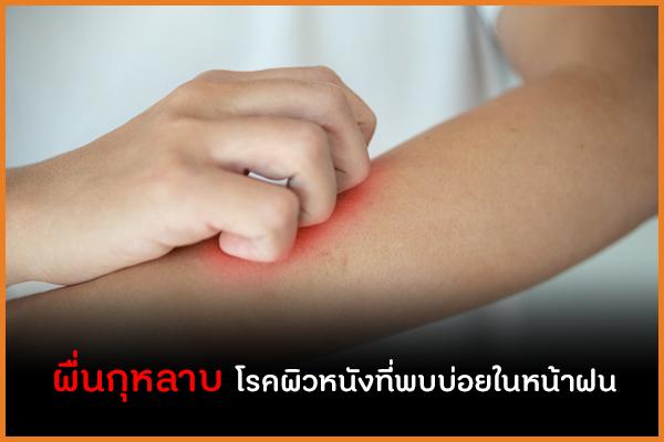 ผื่นกุหลาบ  โรคผิวหนังที่พบบ่อยในหน้าฝน thaihealth