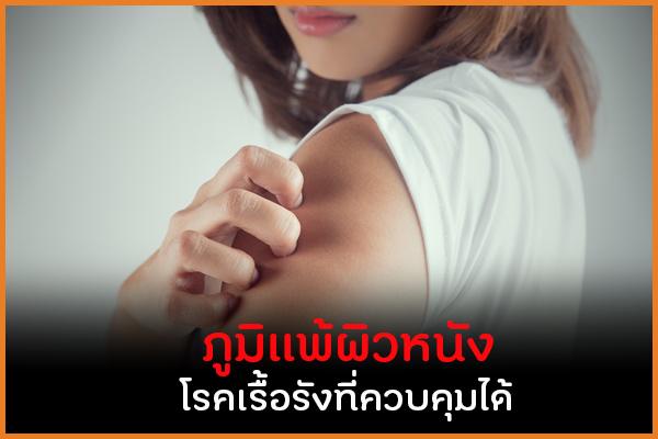 ภูมิแพ้ผิวหนัง โรคเรื้อรังที่ควบคุมได้ thaihealth