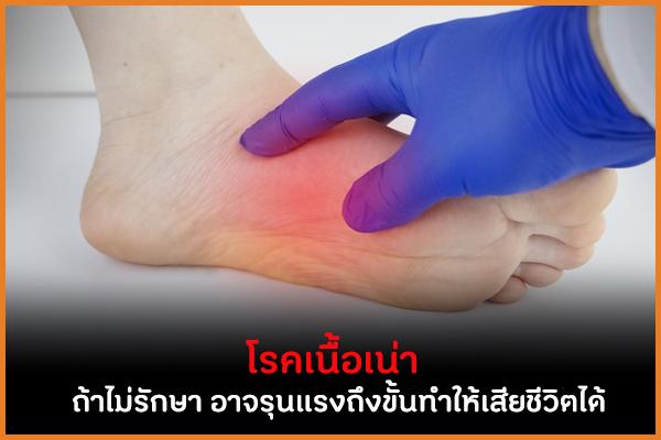 โรคเนื้อเน่าถ้าไม่รักษา อาจรุนแรงถึงขั้นทำให้เสียชีวิตได้ thaihealth