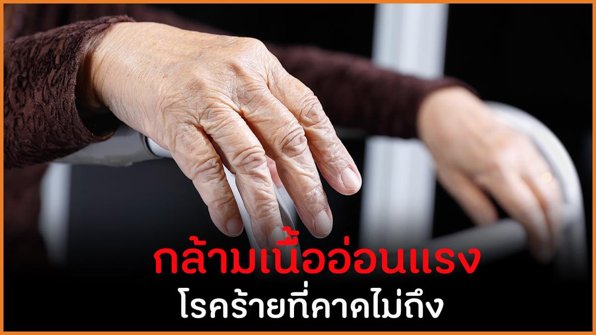 กล้ามเนื้ออ่อนแรง โรคร้ายที่คาดไม่ถึง thaihealth