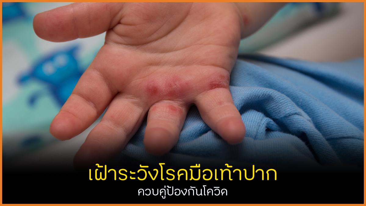 เฝ้าระวังโรคมือเท้าปาก ควบคู่ป้องกันโควิด thaihealth