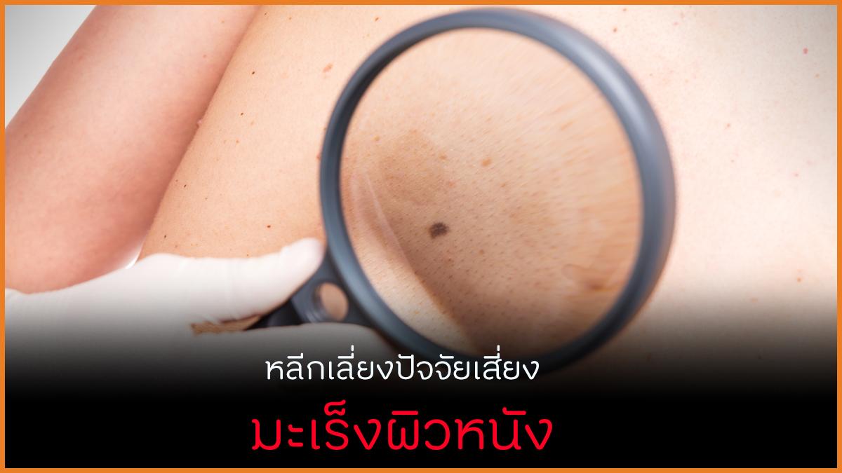 หลีกเลี่ยงปัจจัยเสี่ยง ลดมะเร็งผิวหนัง thaihealth