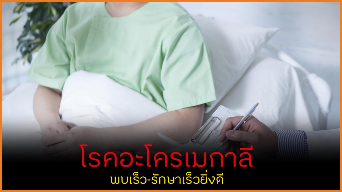โรคอะโครเมกาลี พบเร็ว-รักษาเร็วยิ่งดี thaihealth