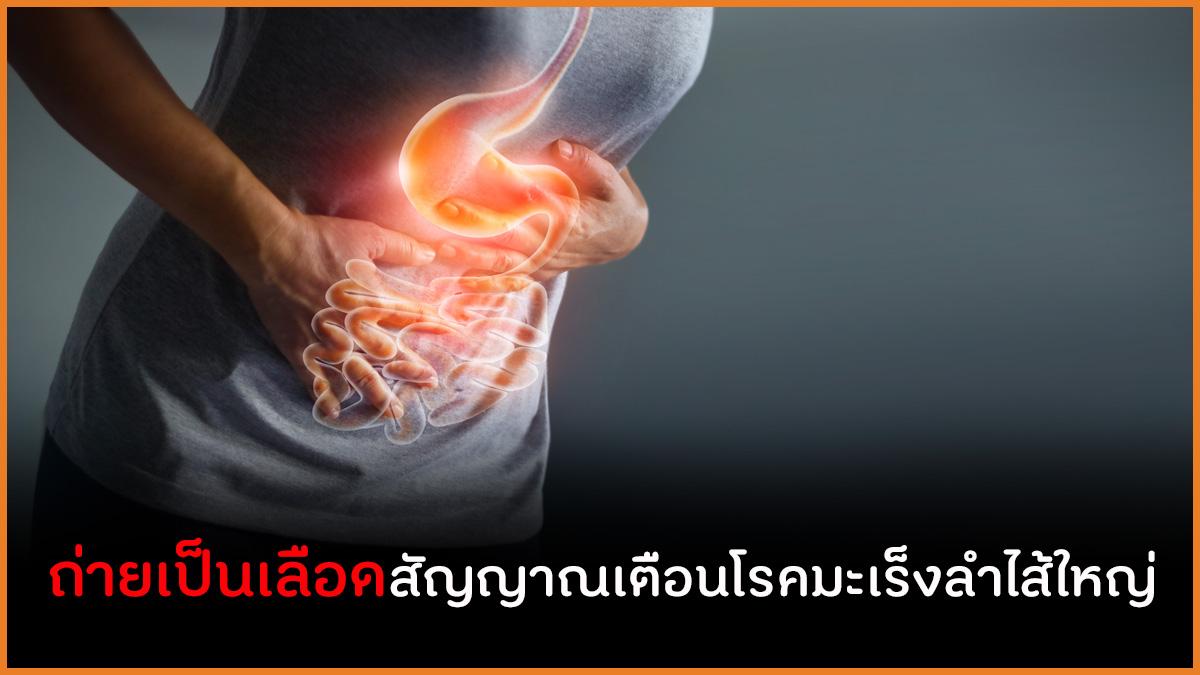 ถ่ายเป็นเลือดสัญญาณเตือนโรคมะเร็งลำไส้ใหญ่ thaihealth