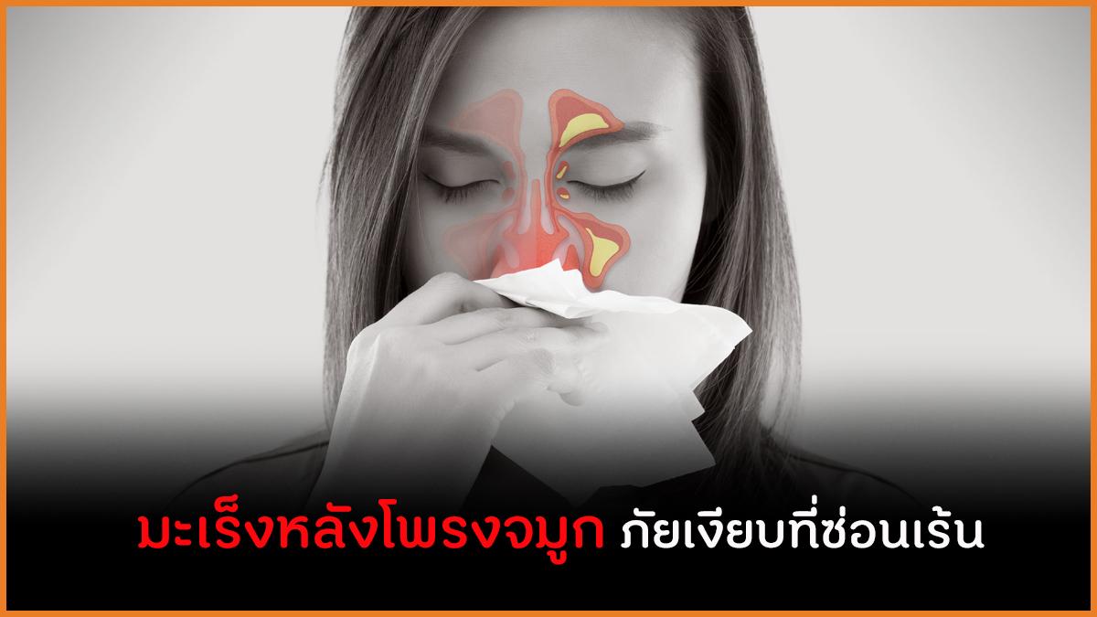 มะเร็งหลังโพรงจมูก ภัยเงียบที่ซ่อนเร้น  thaihealth